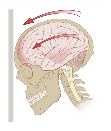 220px-Concussion_mechanics_svg.png